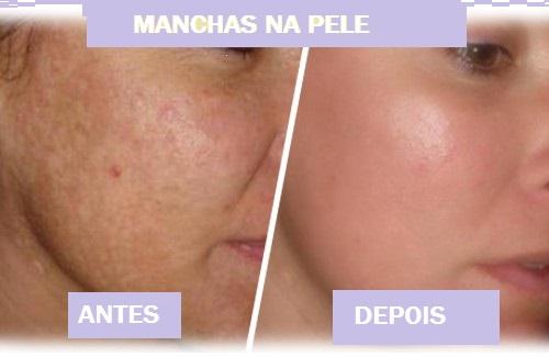 Receitas caseiras para remover manchas na pele