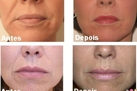 Botox Caseiro para o Rosto com Café e Iogurte Natural
