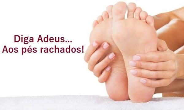 Como acabar com a rachadura nos pés