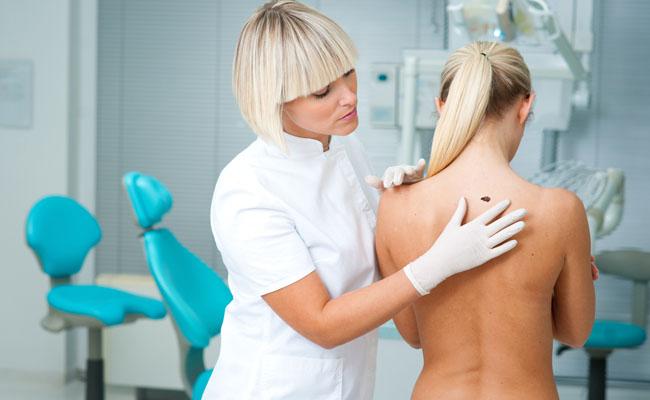 Como detectar um possível câncer de pele