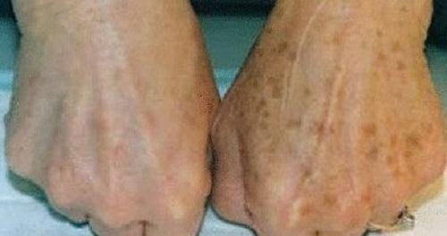 Como combater efeitos de manchas nas mãos?