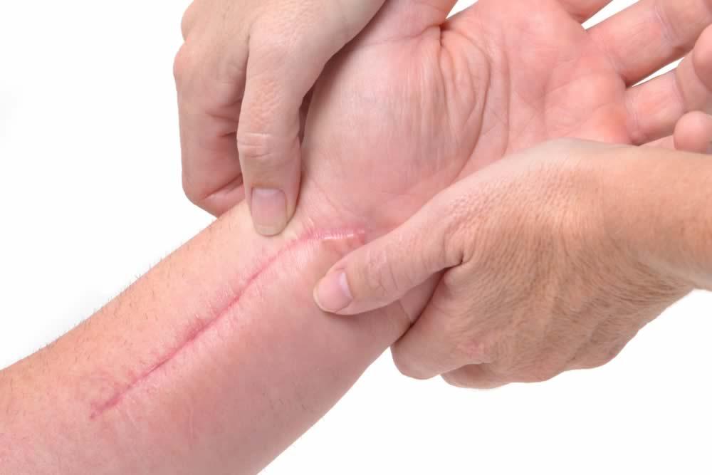 Dicas para apagar marcas das cicatrizes