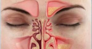 congestao-nasal