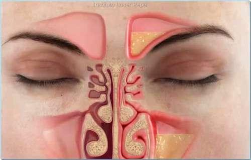 Como eliminar a congestão nasal