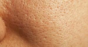 poros-dilatados-tratamentos-caseiros-1