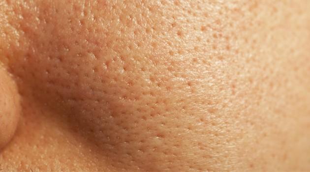 Poros dilatados: tratamentos caseiros