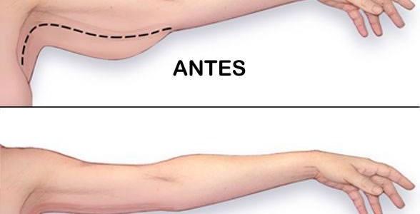 5 dicas para eliminar a gordura do braço