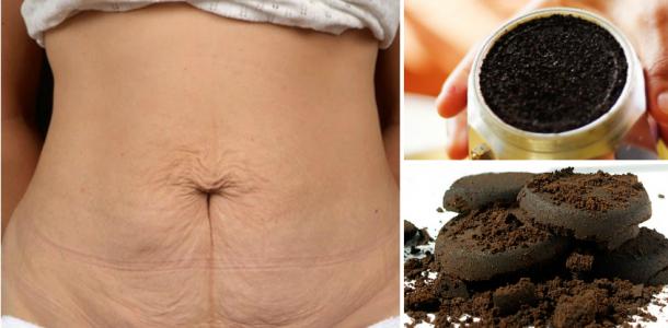 Benefícios do café para o corpo