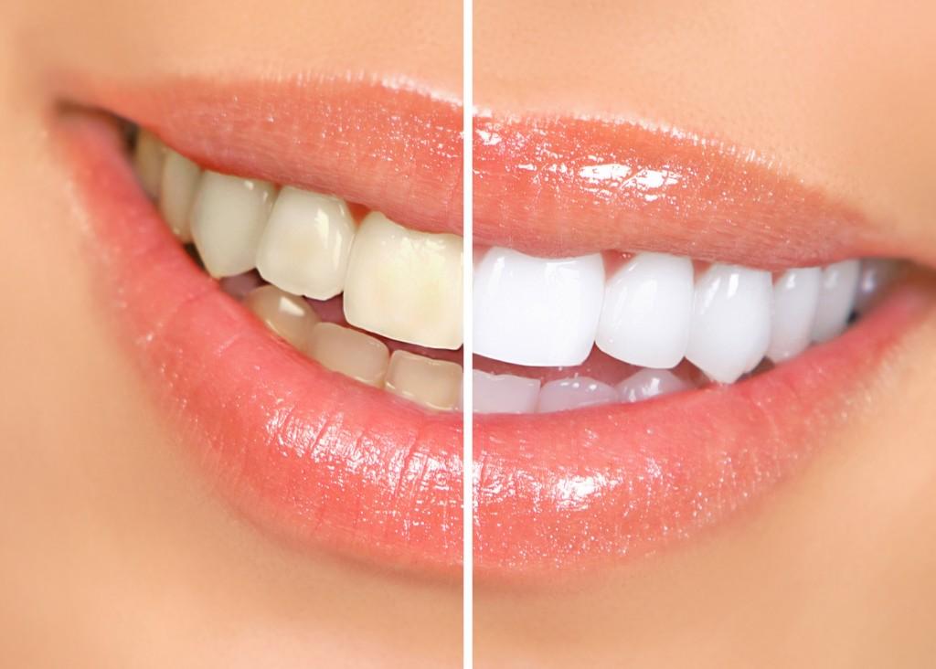 Clarear os dentes com Água Oxigenada