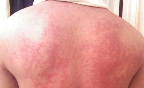 zika sintomas2