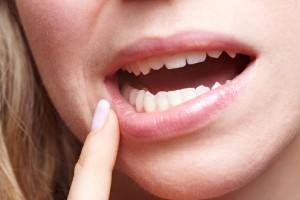 Dicas do que comer após extração de dente