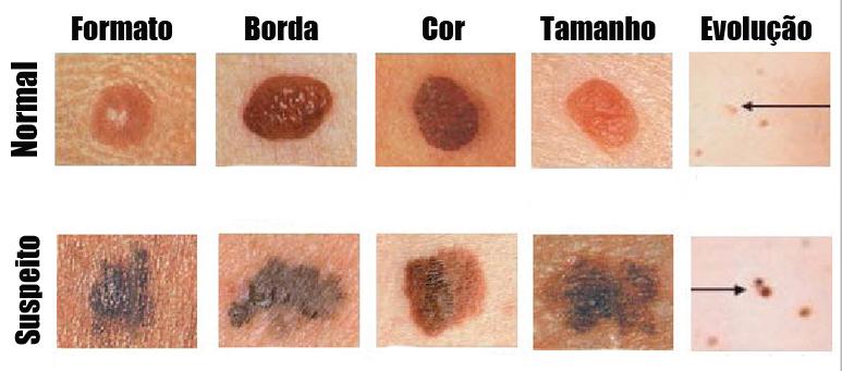 manchas na pele 2