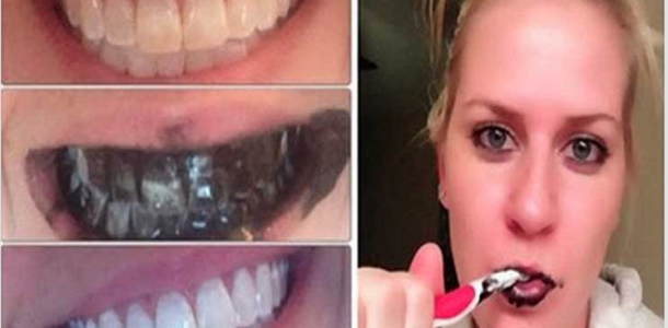 Truque para branquear os dentes