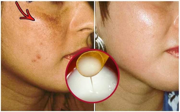 Como clarear manchas no rosto e na pele
