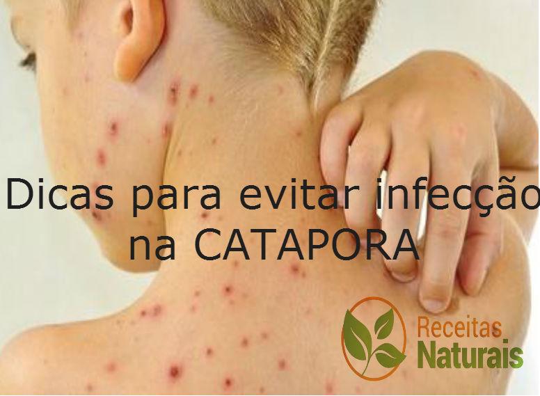 5 dicas para evitar infecções durante a catapora