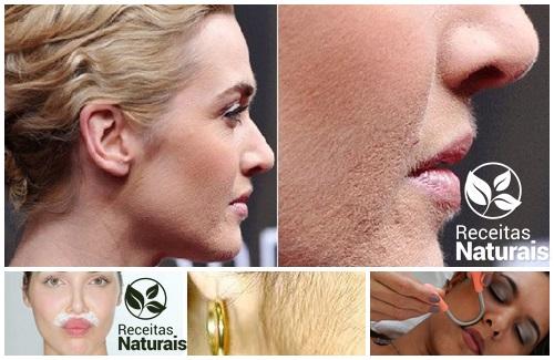Receitas Naturais elimina pelos do rosto