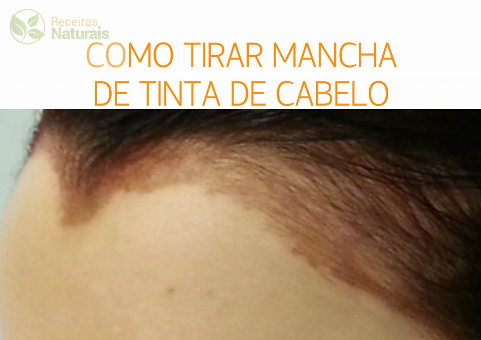 Dicas de como remover manchas de tinta de cabelo da pele