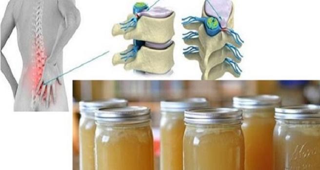 Receita para dor nas costas, joelhos e articulações em poucos dias