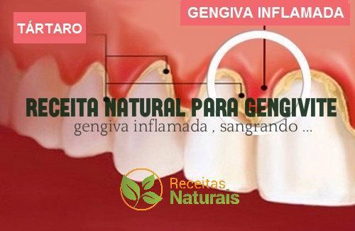 Tratamento natural para gengivite ou gengiva sangrenta