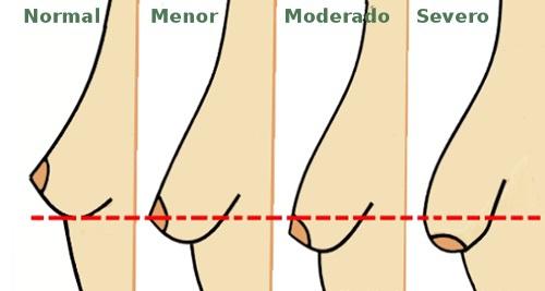 2 dicas caseiras que funcionam mesmo para eliminar a flacidez e deixar os seios bem firmes