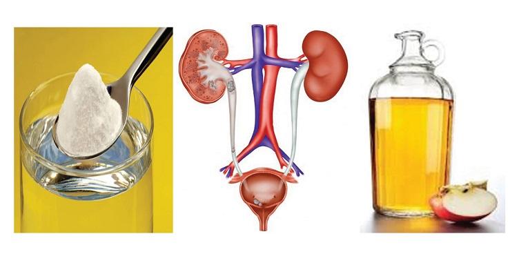 Como eliminar uma infecção urinária com bicarbonato de Sódio