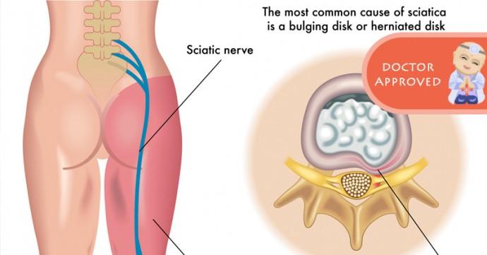 Como acabar com a dor no nervo ciático