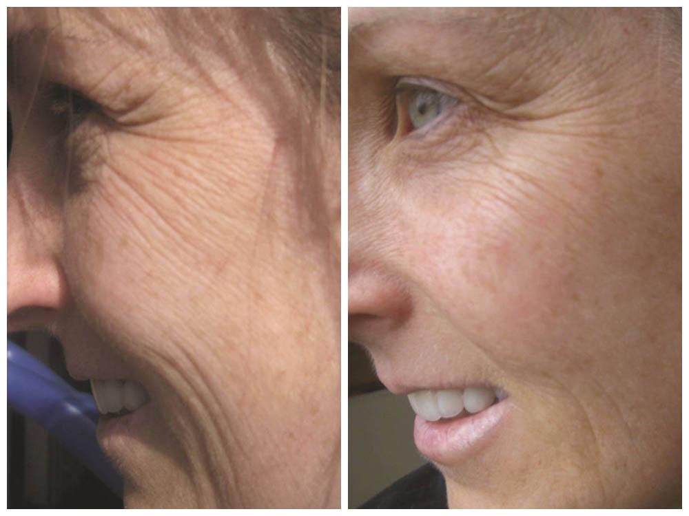 Máscara caseira para eliminar rugas e marcas de expressão