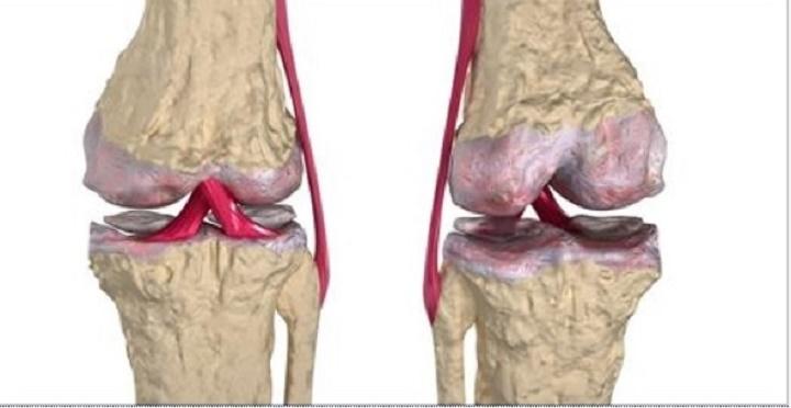 Os melhores remédios naturais para a recuperação de cartilagem quadril e joelhos