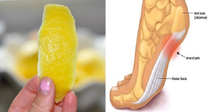 Como usar a casca de limão para se livrar da dor esporão do calcanhar