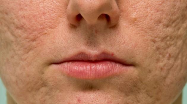 Cicatriz no rosto de acne: 7 jeitos de melhorar a aparência delas