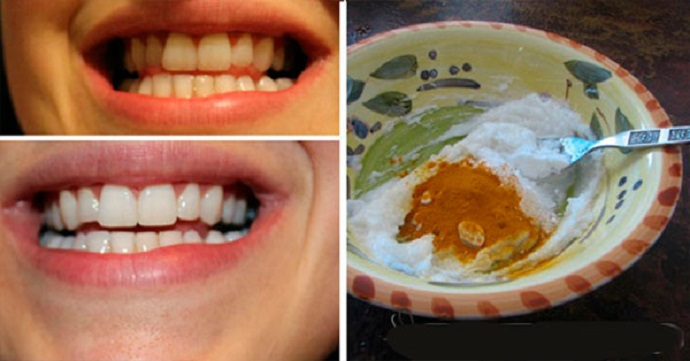 Receita de Clareamento dental Natural
