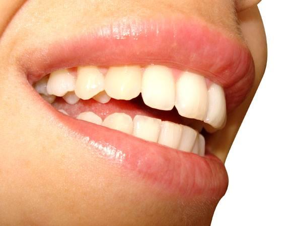 Quando o dentista tira algo azul da gengiva dela, esta jovem fica chocada. Muita gente usa isto todos os dias!