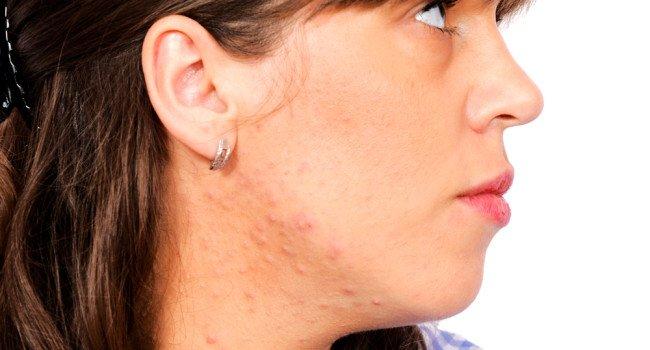 Sua acne pode ser estresse ! Veja :