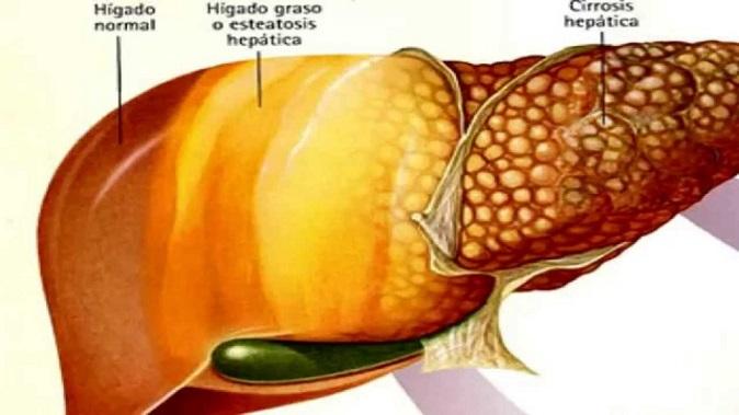 Livre-se do fígado gordo em alguns dias com esse tratamento natural