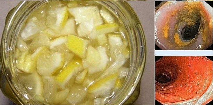 Bebida com 3 ingredientes que Limpa artérias, emagrece e combate gripes