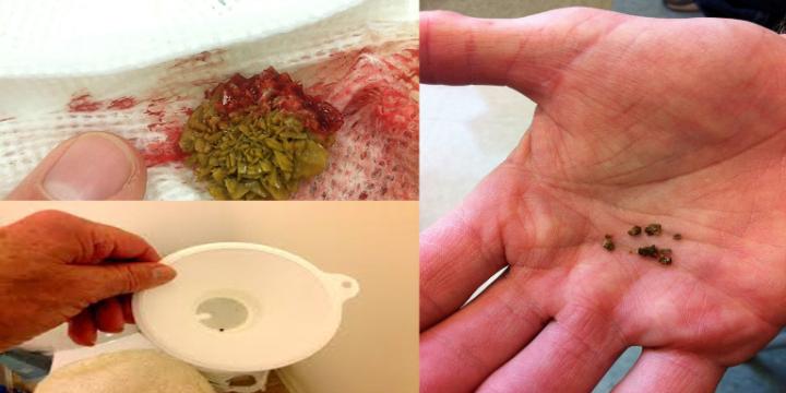 Fim da pedra nos rins – Receitas Naturais