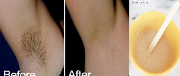 Remova o pelo das axilas sem dor com essas receitas naturais
