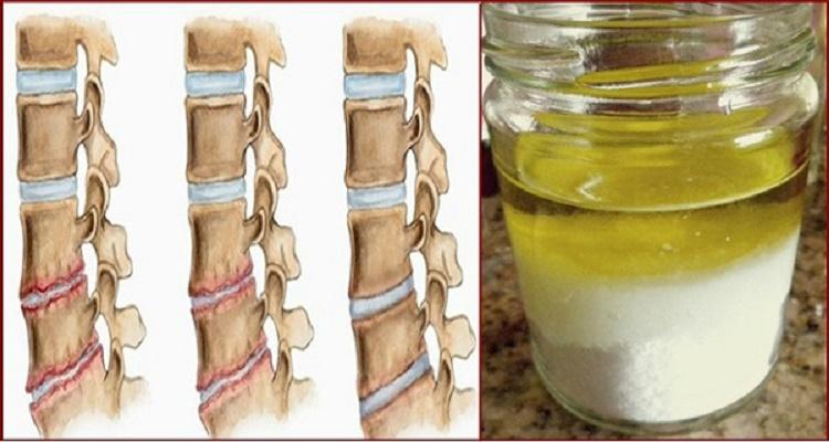 Mistura medicinal fortalece os ossos e elimina dor nos joelhos