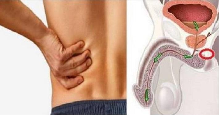 9 sinais de câncer na próstata que nenhum homem deve ignorar