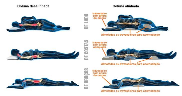 Veja como escolher a almofada ideal e evitar ou aliviar dores cervicais no ombro e cabeça