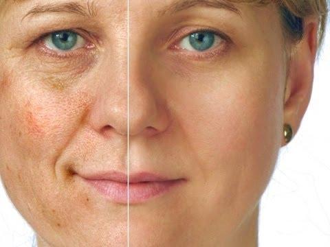 Solução elimina manchas escuras na pele