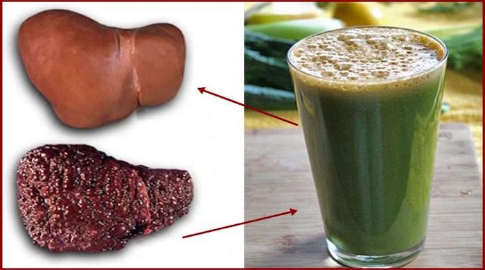 Bebida cura fígado gordo em 30 dias