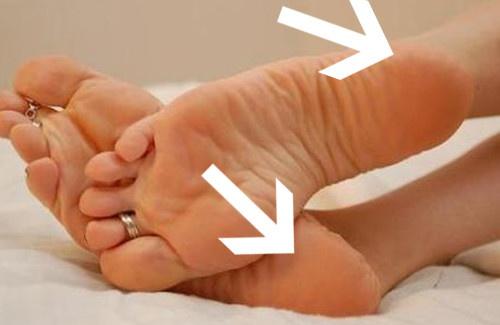 Doze dicas para acabar com pés rachados