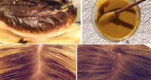 cerveja_preta_e_banana_-_cabelo_-_queda_de_cabelo