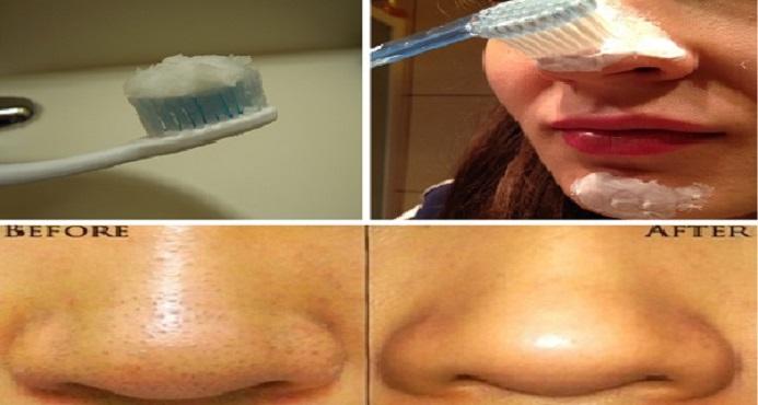 Livre-se dos cravos com escova de dentes