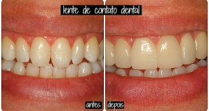 lente-decontato-dental-1