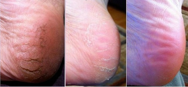 Receitas Naturais para rachaduras e Calos nos pés