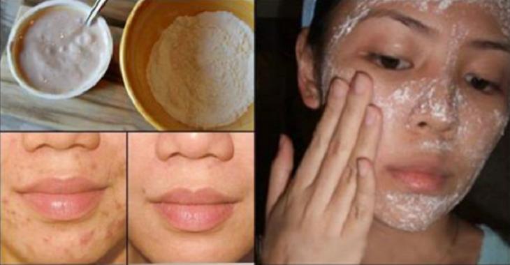 Máscara caseira simples com noz-moscada remove cravos, espinhas, cicatrizes e marcas de expressões