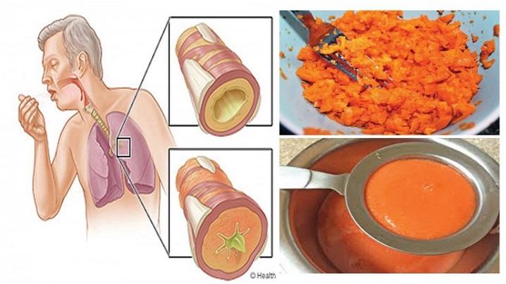 Xarope elimina o catarro e cura a tosse