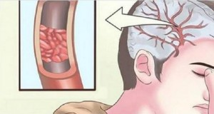 Sinais de deficiência de magnésio